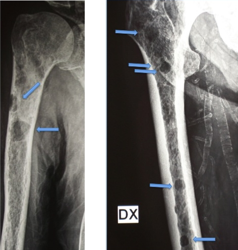 metastasi tumore prostata osteoaddensanti