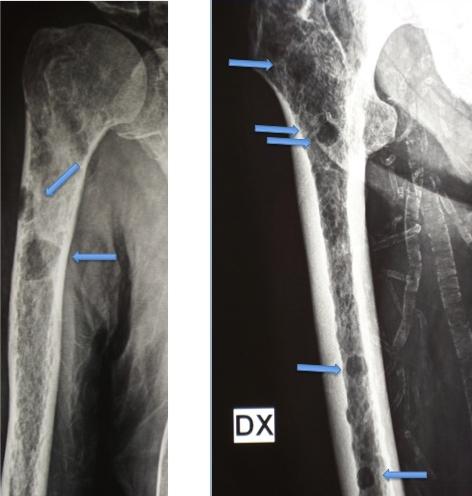 metastasi osseo prostata osteoaddensanti