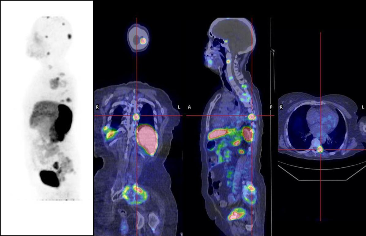 trattamento+con+microonde+tumore+prostata+policlinico+gemelli+de