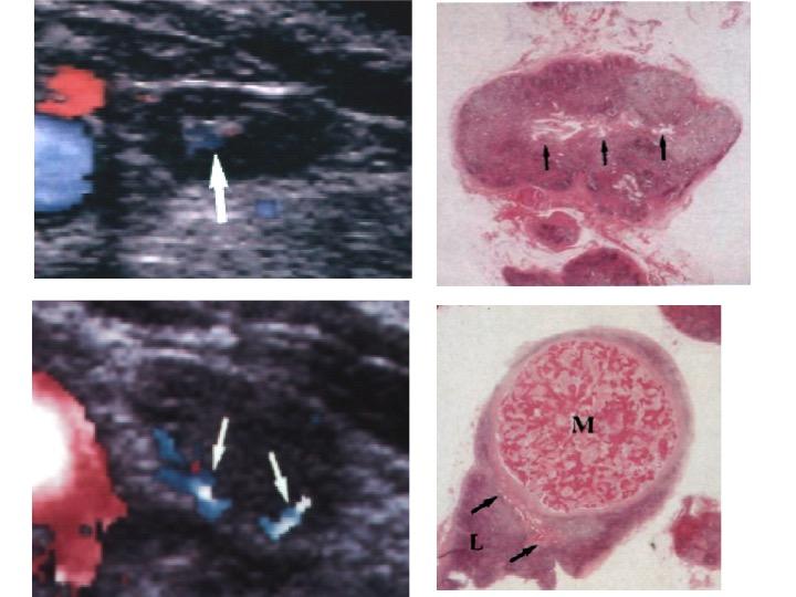 Nodulo tiroideo 2 cm vascolarizzato